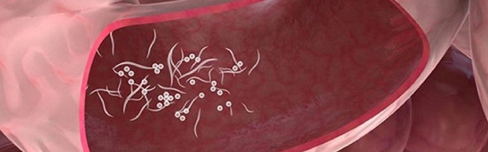 Paraziti interni/externi